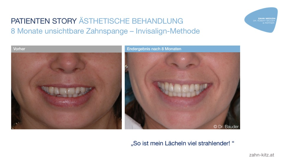 Invisalign Methode Dr Robert Bauder Kitzbühel
