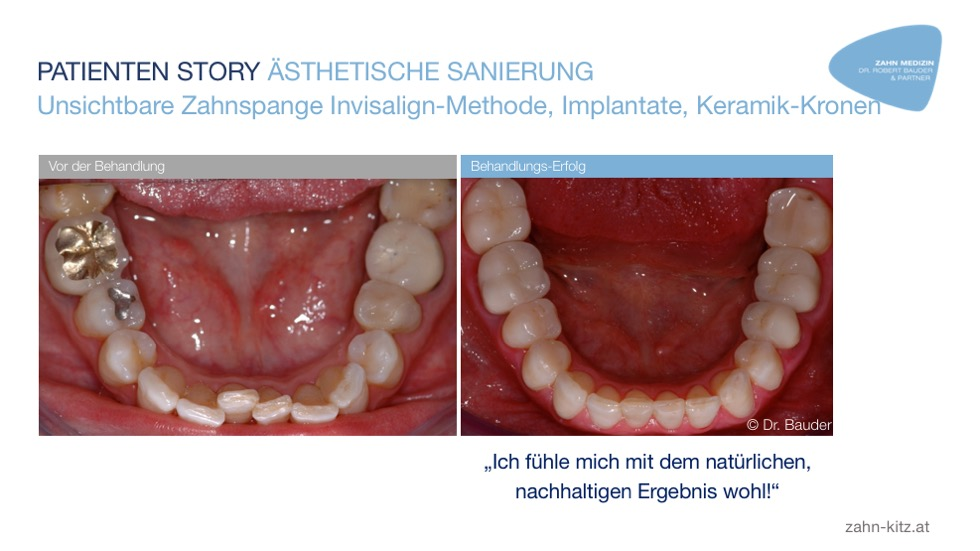 Invisalign Methode Implantate Keramikkronen zahn-kitz